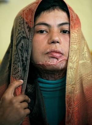 Razia Ahmadi