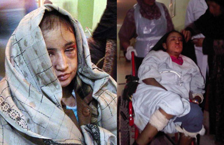 Sahar Gul a teenager badly tortured by her in-laws in Afghanistan