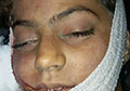 Salma, a victim of Ashraf Ghani's bodyguards' roughshod riding
