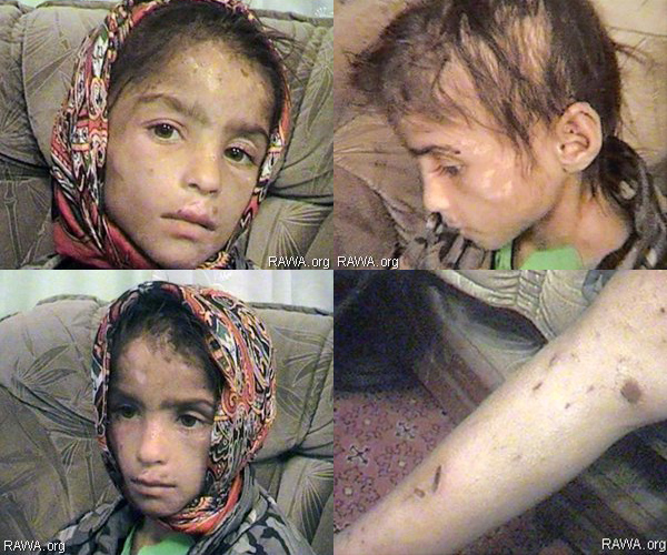 Samia, victim of family violence in fundamentalists-dominated Afghanistan