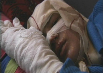 Self immolation Afghan woman by Sharmeen obaid Chinoy