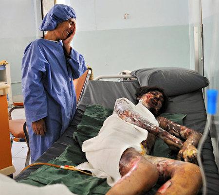 Najiba in hospital