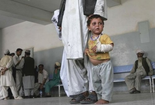 Afghan child wounded in the US airstrikes