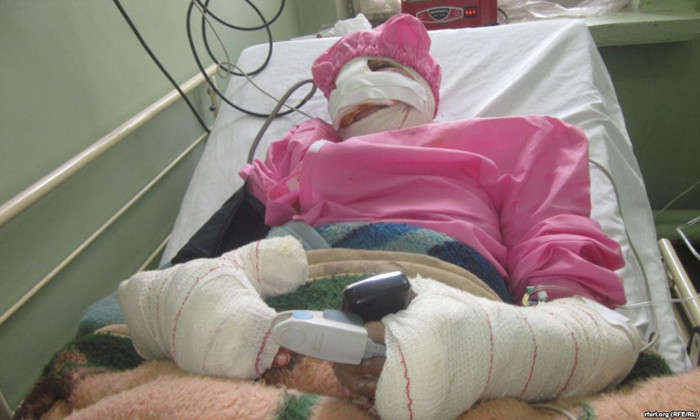 Sitara lying in a hospital after her lips and nose were cut off by her husband using a knife