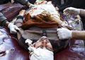 Over 40 killed, 30 injured in attack, explosion in Afghanistan (PHOTOS)