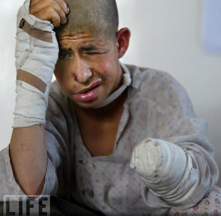 Mine victim Mohammed Agha, 15, blinded in one eye with leg injuries and the loss of his right hand while playing with an unexploded ordinance with his younger brother