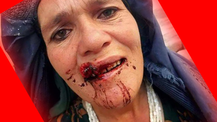 Woman beaten by local strongman loyal to warlord Bashir Qanet