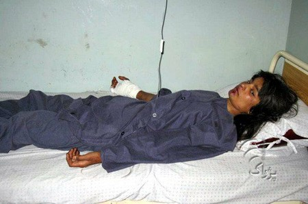 A girl who was wounded in coalition forces bombardment in Haska Mina district of eastern Nangarhar