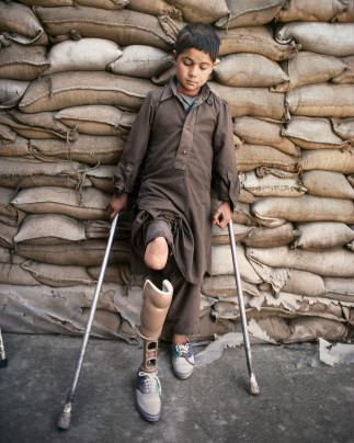 At the orthopedic centre of Wazir Hospital, nine-year-old Wazir Hammond rests against a wall of sandbags that protect the hospital against rockets, shelling and bombs