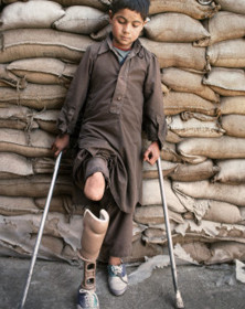 At the orthopedic centre of Wazir Hospital, nine-year-old Wazir Hammond rests against a wall of sandbags