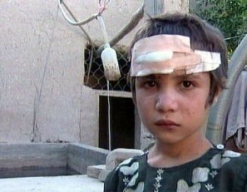 Small Afghan girl injured
