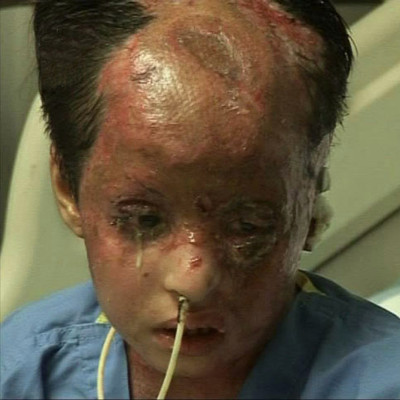 white_phosphorus_victim_afghanistan.jpg
