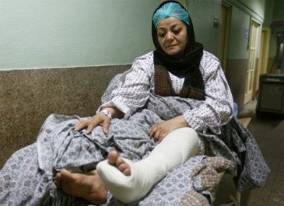 An injured woman recovers in hospital, one day after an attack by ISIS claimed dozens of lives at the Kabul Military Hospital, March 9, 2017