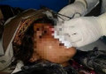 Man cuts off his wife's nose in Faryab before fleeing to Taliban-held area