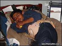 workers_injured_iran.jpg