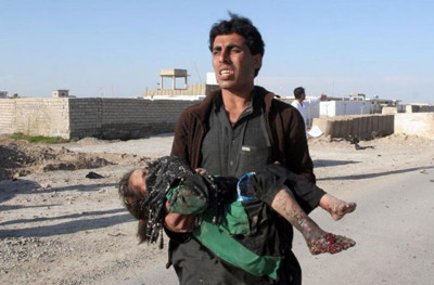 An Afghan man carries a wounded girl at the side of a suicide attack that killed civilians and a policeman in Lashkar Gah