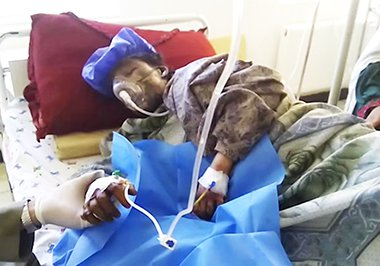 Zahra girl burned by in laws Ghor Afghanistan