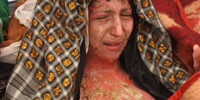 Gulbar, an Afghan woman is burnt by her husband